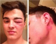 Ohio teen continues playing varsity football despite charges of felony assault