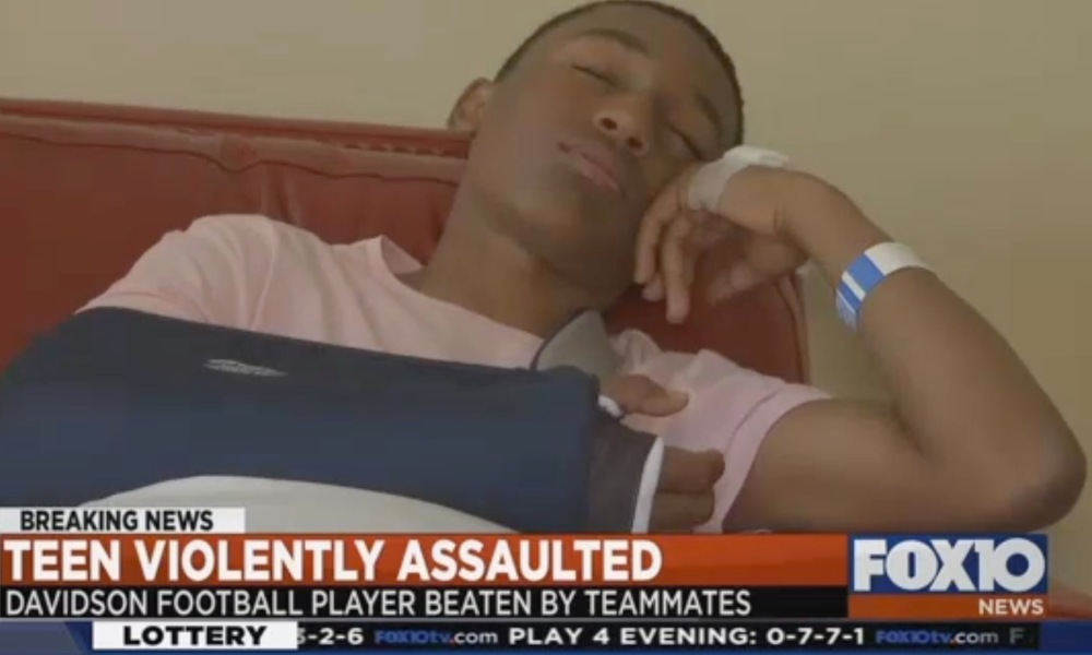 Rodney Kim Jr. suffered a broken arm in a hazing incident at Davidson High in Alabama (Photo: WALA video screen shot)