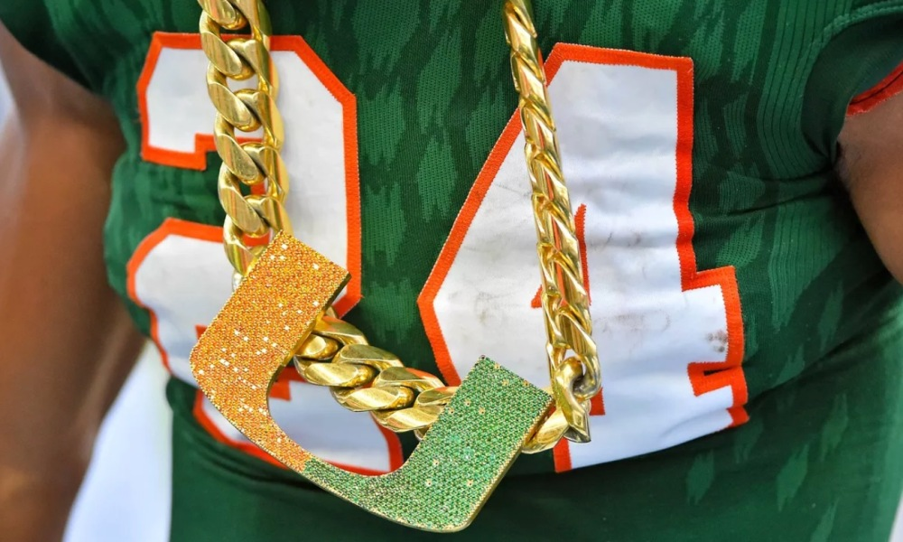 Miami's turnover chain (Photo: USA TODAY Sports Images)