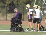 Complications from routine heart surgery cost California football coach his legs, hand
